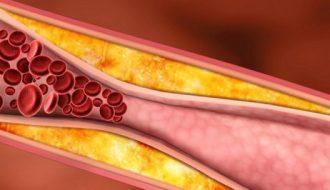 mauvais cholestérol